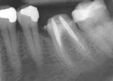 Radiographie d'une molaire avec les vis en place.