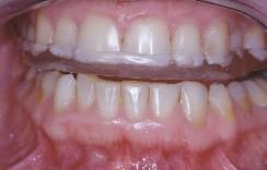 Les dents du haut et du bas ne peuvent plus entrer en contact.