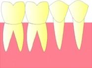 Les dents d'une même arcade sont côte à côte et restent