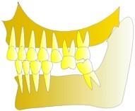 La dent continue de descendre, sa voisine, la deuxième prémolaire se disloque également et perd ses contacts.