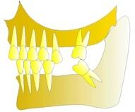 Les dents continuent à se verser dans tous les sens. La mastication ne se fait plus de ce côté de la bouche, les articulations de la mâchoire se trouveront perturbées (craquements, douleurs, bourdonnement, claquements, etc). Une habitude nocive de grincement des dents peut alors s'installer (bruxisme).