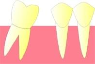 La dent se trouvant en arrière de la dent extraite, commence à se coucher vers l'avant (version).
