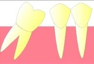 Elle se couche de plus en plus, jusqu'à réduire presque complètement l'espace qu'occupait la dent extraite (migration).