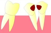 Cette accumulation d'aliments et de bactéries pourra provoquer une perte de l'os qui soutient la dent (atteinte parodontale).