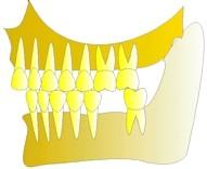 Une première molaire inférieure a été extraite, la dent qui se trouve en face n'est pratiquement plus en fonction et commence légèrement à se disloquer.