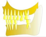 Si la deuxième prémolaire du bas est manquante, la molaire du haut n'a plus du tout d'appui et régresse vers le bas. Il n'y a plus d'auto-nettoyage par la mastication, la dent va se carier et se recouvrir de tartre.
