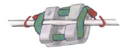 Les verrous traditionnels nécessitent des ligatures pour maintenir l'arc en place.