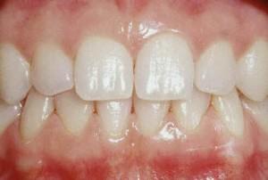 Une gencive saine est rose, adhère à la dent et ne saigne pas.