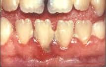 Présence de tartre et de plaque dentaire.