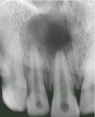 Les deux incisives sont infectées et présentent un kyste à l'extrémité des racines.