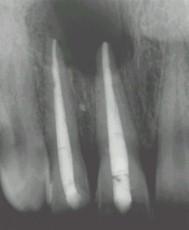 Les canaux des racines sont obturés avant l'intervention.