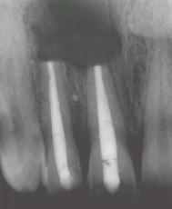 Section de l'extrémité de la racine en contact avec le kyste.