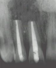 Radiographie à 8 mois post-opératoire, l'os est en cours de reformation.