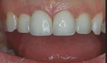Dans ce cas, 4 dents du haut ont été recouvertes de facettes.