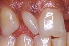 Dent atteinte de microdontie.