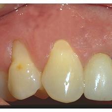 Six semaines après l'intervention. La cicatrisation complète se fait en 4 à 6 semaines.