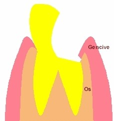 Cette dent cariée ou fracturée doit être reconstituée et couronnée.