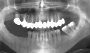 Trois dents sont manquantes au maxillaire inférieur.
