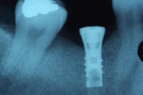 Radiographie montrant l'implant posé.