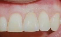 Remplacement d'une dent unitaire (pas de mutilation des dents voisines)