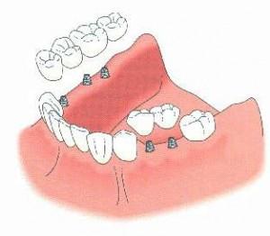 Remplacement de plusieurs dents manquantes par un bridge sur implants (évite l'appareil amovible) (dessins Nobel Biocare)