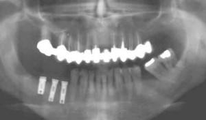 Trois implants sont posés dans l'os et mis en nourrice pendant 3 à 5 mois.