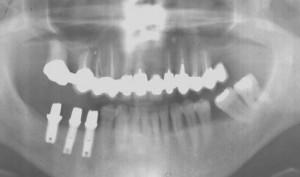 Pose des inlay-cores (pièce intermédiaire) vissés dans le corps de l'implant.