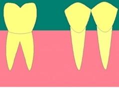 Une dent est manquante. Elle a été extraite avec sa racine.
