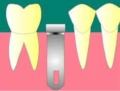 La chirurgie en un temps:<br>L'implant est posé. Une vis de cicatrisation émerge de la gencive. Dans certains cas, de plus en plus rares, l'implant est complètement enfouie sous la gencive, ce qui nécessite alors un deuxième temps opératoire. <br><br>