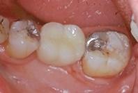 Les ailettes sont collées sur la face linguale des dents.