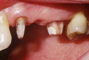 Les dents piliers sont préparées.