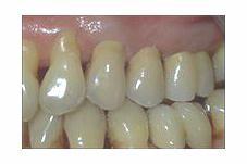 Le bridge joue un double rôle : il couronne les dents abîmées et remplace la dent manquante.
