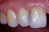 Restauration au composite dans le cas d'une dent antérieure.