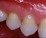 Dent traitée avec du composite.