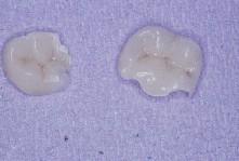 Onlays réalisés par le laboratoire de prothèse.