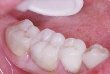 Onlays collés sur les dents.