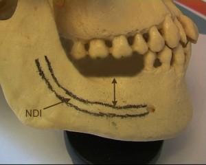 Les 2 molaires sont absentes. La hauteur osseuse disponible est matérialisée par la flèche.