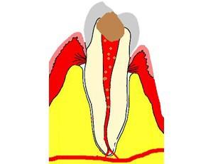 La carie atteint la pulpe. Les bactéries envahissent la pulpe. Les canaux sont infectés jusqu'à leur extrémité.