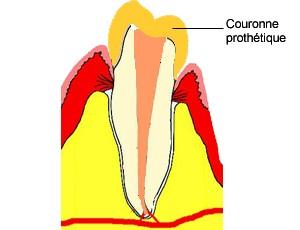 Quelques années plus tard, la dent peut présenter des foyers infectieux : granulomes et kystes qui envoient des bactéries dans tout l'organisme.