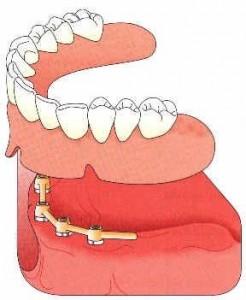 On peut poser de 4 implants sur lesquels vient se fixer une barre de rétention, l'appareil est alors clipé à la barre par des cavaliers . La stabilité est considérablement améliorée et la mastication est très satisfaisante.