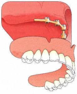Cette technique s'applique également à la mâchoire supérieure, elle permet de diminuer sensiblement le recouvrement du palais.