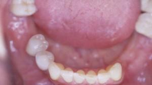 Vues en bouche au maxillaire inférieur.