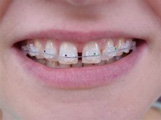 orthodontie_invisible2