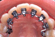 orthodontie_invisible7